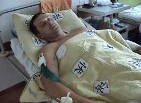 При затриманні озброєного зловмисника поранено працівника міліції